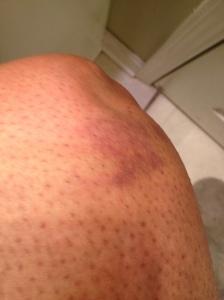 my bruised, post slip & fall while running knee